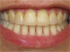 Picture of a smile before teeth whitening services