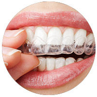 Photo of invisible orthodontic aligner being placed in mouth