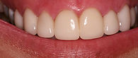 Picture of a smile after porcelain veneers replacing stained bonding