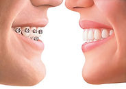 Picture of smile with wired orthodontics and a smile with invisalign orthodontics