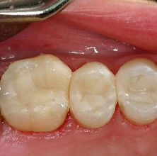 Picture of white fillings replacing silver amalgam fillings