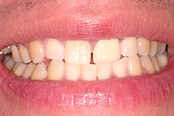 Picture of a discolored smile with spaces between the teeth
