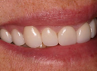 Picture of a beautiful smile restored with porcelain veneers done by Jeffrey Milne DDS