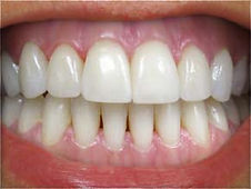 Picture of a smile after teeth whitening