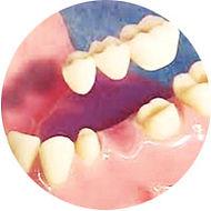 dental bridge being placed