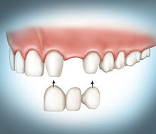 Picture of teeth and a dental bridge replacing a missing tooth
