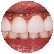 dental bonding picture