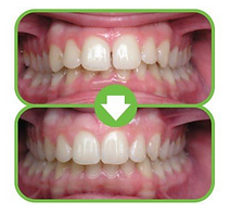Picture of smile before and after invisalign