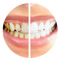 Before and after picture of porcelain veneers