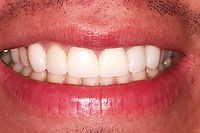 Picture of a smile restored with porcelain veneers to close spaces between teeth
