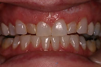 Picture of a smile with chipped discolored teeth prior to porcelain dental veneers