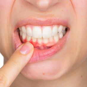 La parodontologie