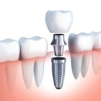 L'implantologie