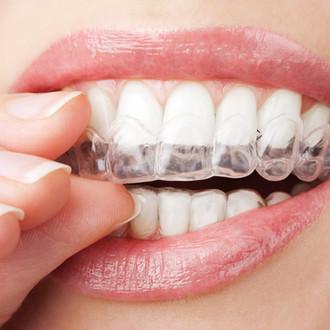 Orthodontie et contention