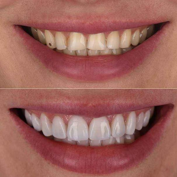 L'esthétique dentaire
