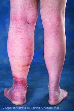 Lower-Leg-Swelling-Image.jpg