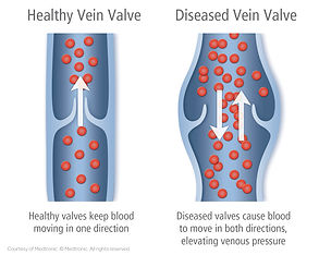 Healthy-vs.-Diseased-Vein-Valve-2-Illust