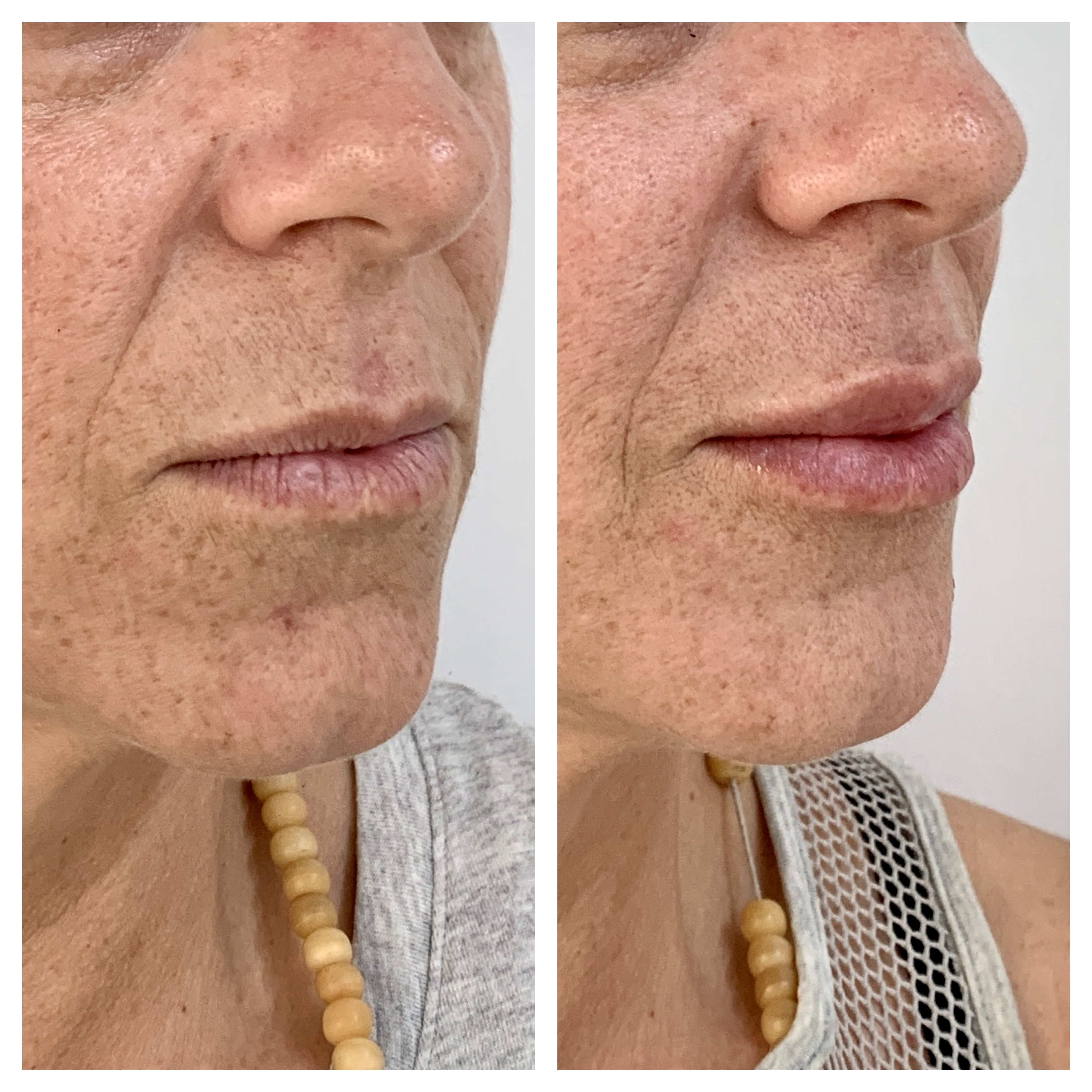 Aumento de labios con ácido hialurónico. Clínica Dra. Fernanda Muñoz.