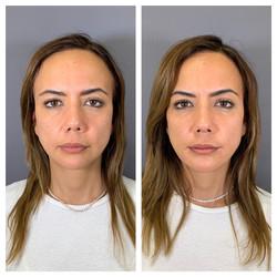Aumento de pómulo (con ácido hialurónico) y mentón (hidroxiapatita cálcica).  Clínica Dra Fernanda M
