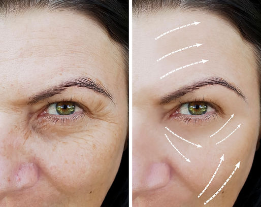 woman facial wrinkles before and after p