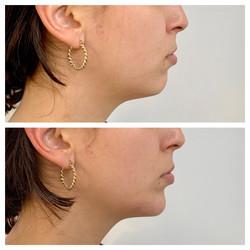 Aumento de mentón no quirúrgico con Hidroxiapatita Cálcica. Clínica Dra. Fernanda Muñoz.