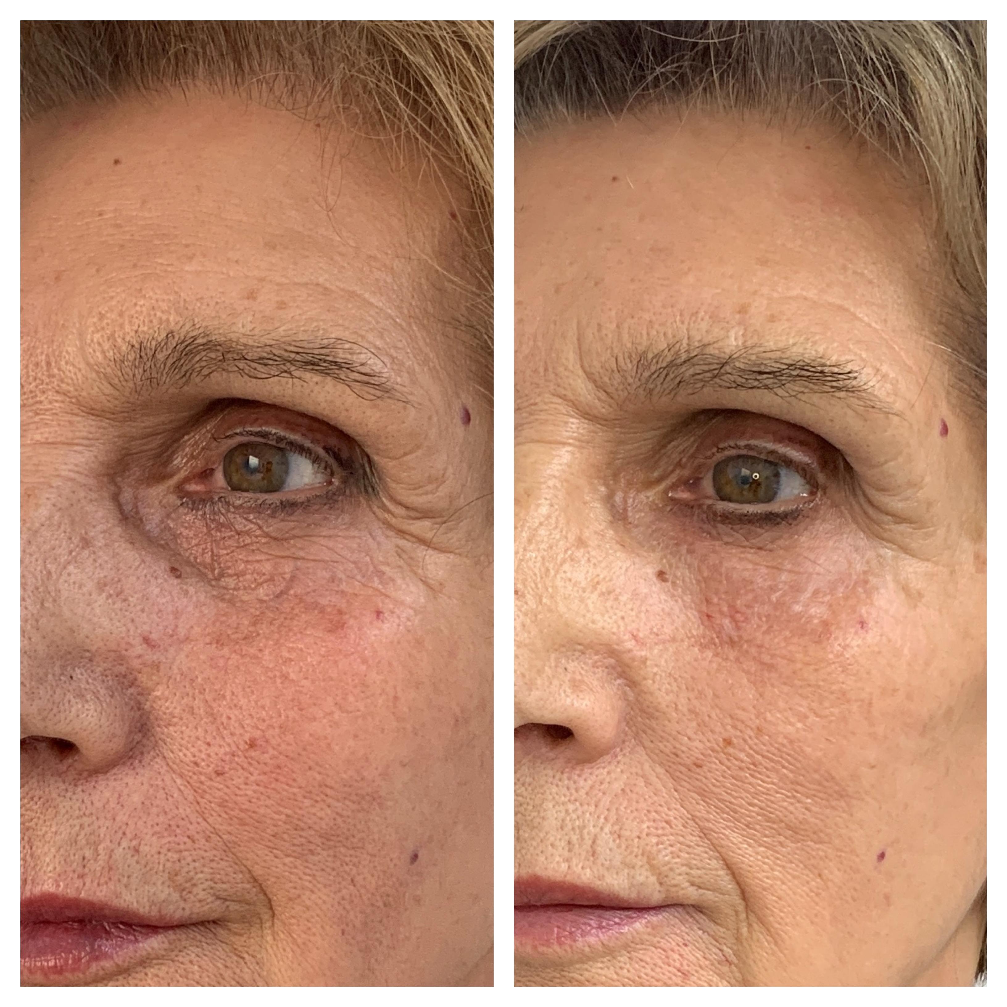 Tratamiento de ojeras con ácido hialurónico. Clínica Dra Fernanda Muñoz.