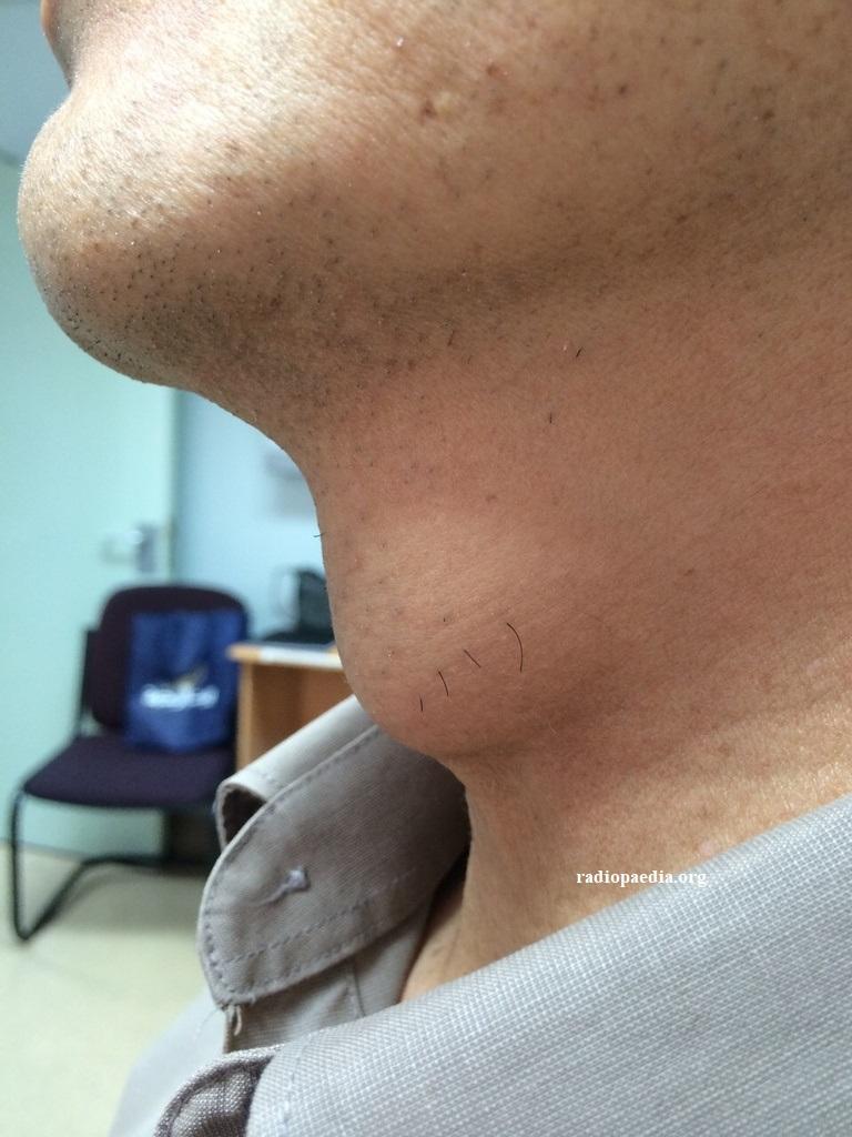 cisti mediana del collo