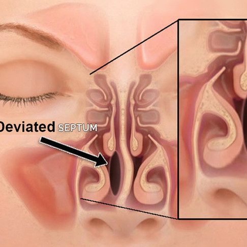 Setto nasale deviato: nessuno è perfetto