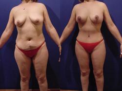 Abdominoplastía (Lipectomía Abdomina