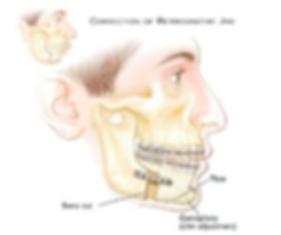 Orthogntahics.png