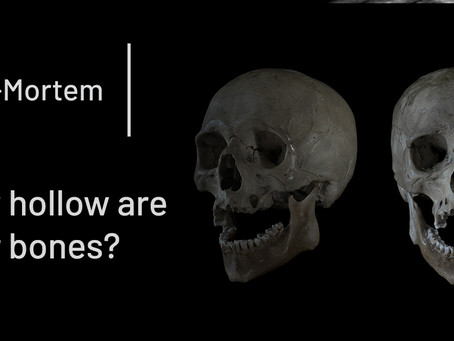 How hollow are your bones?