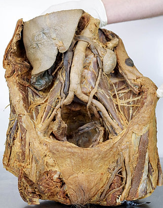 Anatomy Lab LIVE -dissection based, human body events