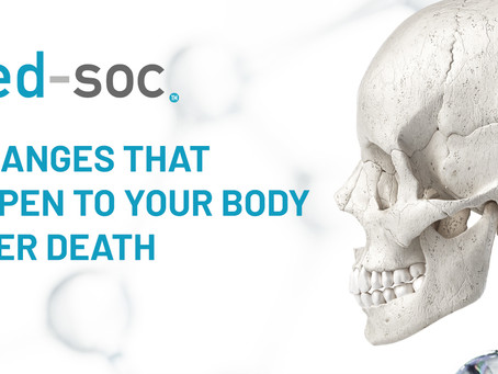 5 changes that happen to your body after death.