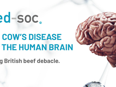 Mad cows disease and the human brain.