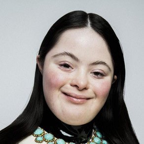 Downs Syndrome model featured in Vogue