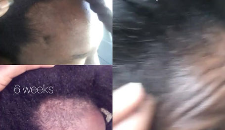Fill in Bald Spot and Promote Growth on a Balding Head.