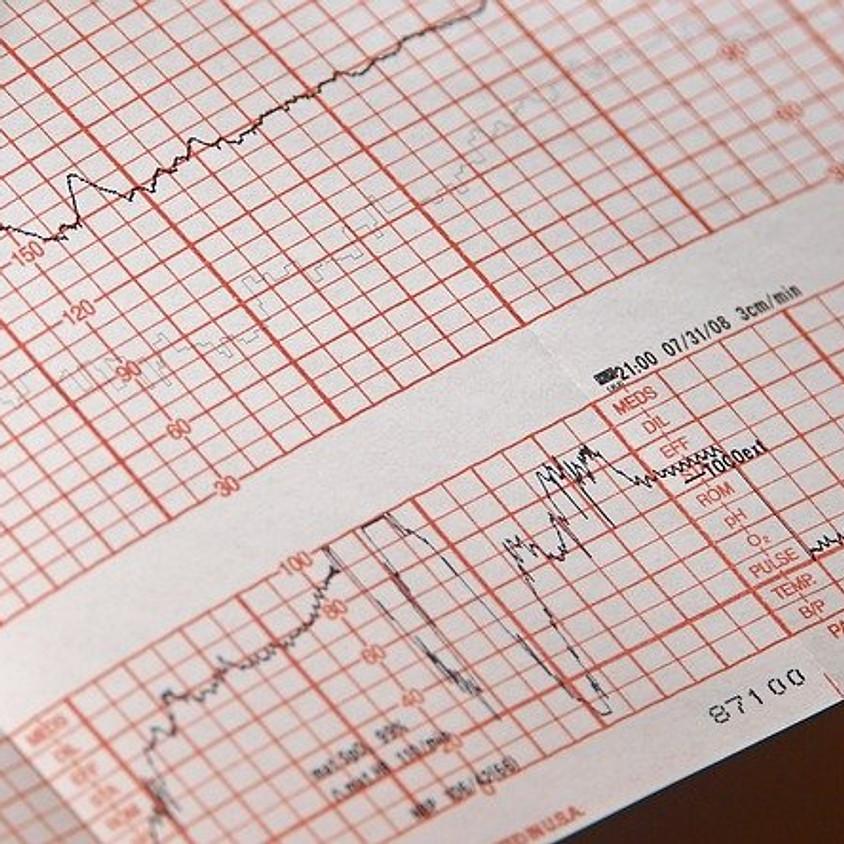Advanced Cardio Life Support