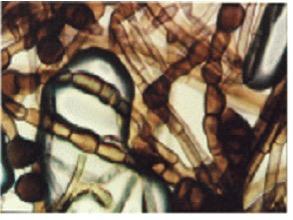 KHZ mycelium (microscopic)