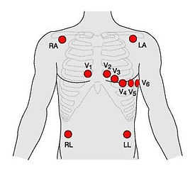 typical electrodes configuration.jpg