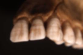 Teeth_displaying_Enamel_hypoplasia_lines