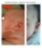 dermatite atopica.jpg