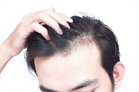 vitamin-d-deficiency-can-lead-to-hair-loss-1100x734.jpeg