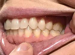 Virtual-Orthodontic-Consultation-Right-B