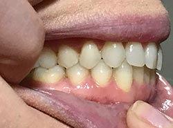 Virtual-Orthodontic-Consultation-Left-Bi