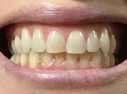 Virtual-Orthodontic-Consultation-Front-B