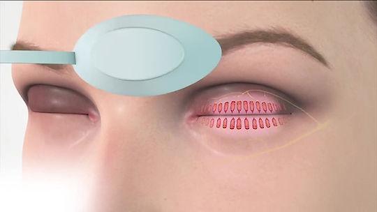 lumière pulsée ipl blepharite oeil sec