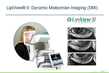 lipiview, oeil sec, ophtalmologie, lipiflow