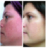 After 90 days of using Nerium AD