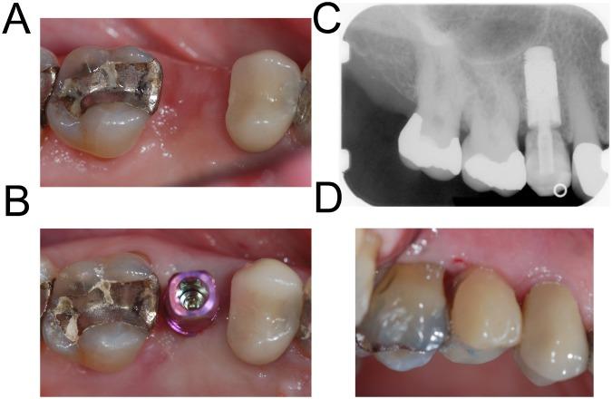 implant be af.png