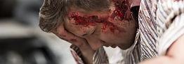 Severe head traumatic brain damaage.